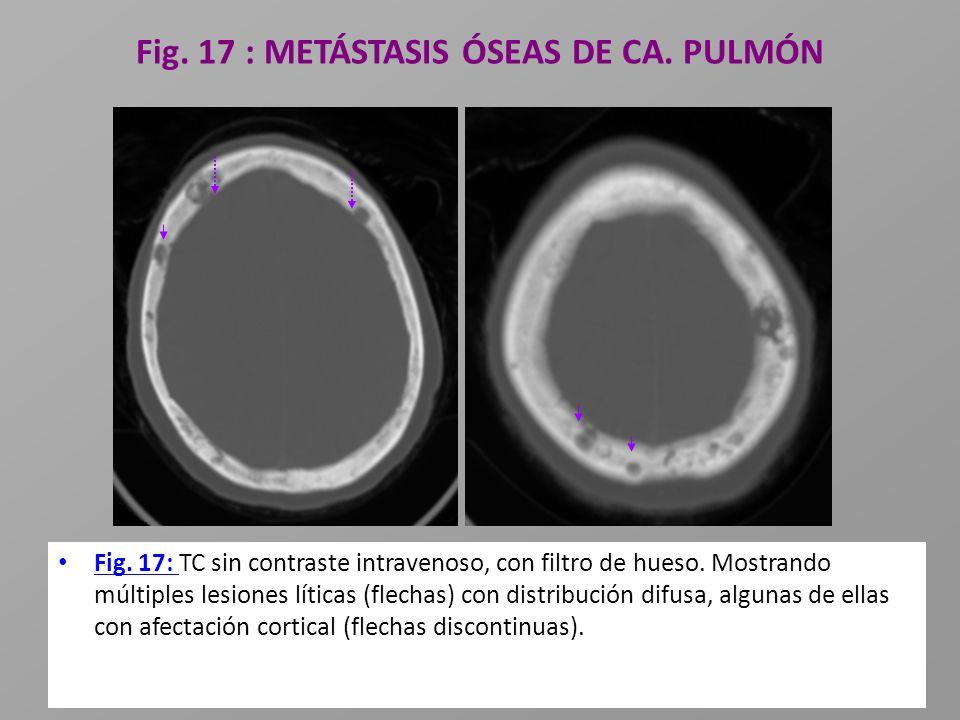 Fig. 17 : METÁSTASIS ÓSEAS DE CA. PULMÓN Fig. 17: TC sin contraste intravenoso, con filtro de hueso. Mostrando múltiples lesiones líticas (flechas) co