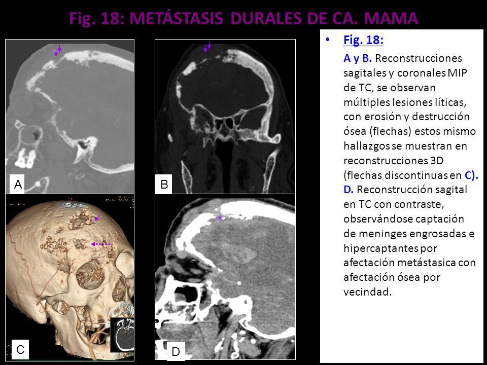 Fig. 18: METÁSTASIS DURALES DE CA. MAMA Fig. 18: A y B. Reconstrucciones sagitales y coronales MIP de TC, se observan múltiples lesiones líticas, con
