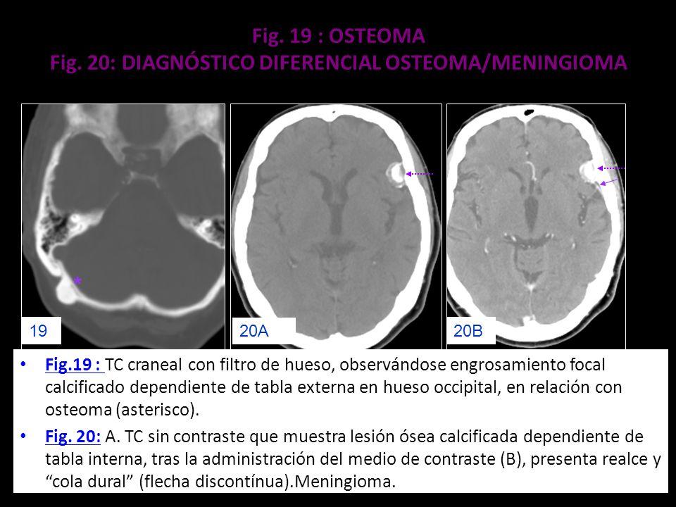 Fig. 19 : OSTEOMA Fig. 20: DIAGNÓSTICO DIFERENCIAL OSTEOMA/MENINGIOMA Fig.19 : TC craneal con filtro de hueso, observándose engrosamiento focal calcif