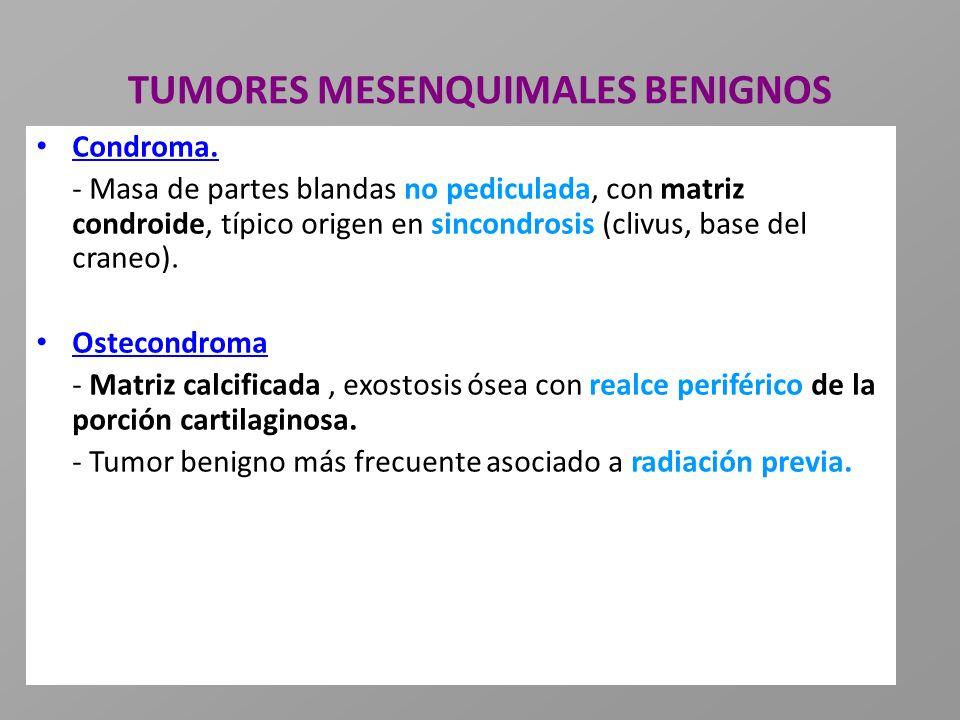 TUMORES MESENQUIMALES BENIGNOS Condroma. - Masa de partes blandas no pediculada, con matriz condroide, típico origen en sincondrosis (clivus, base del