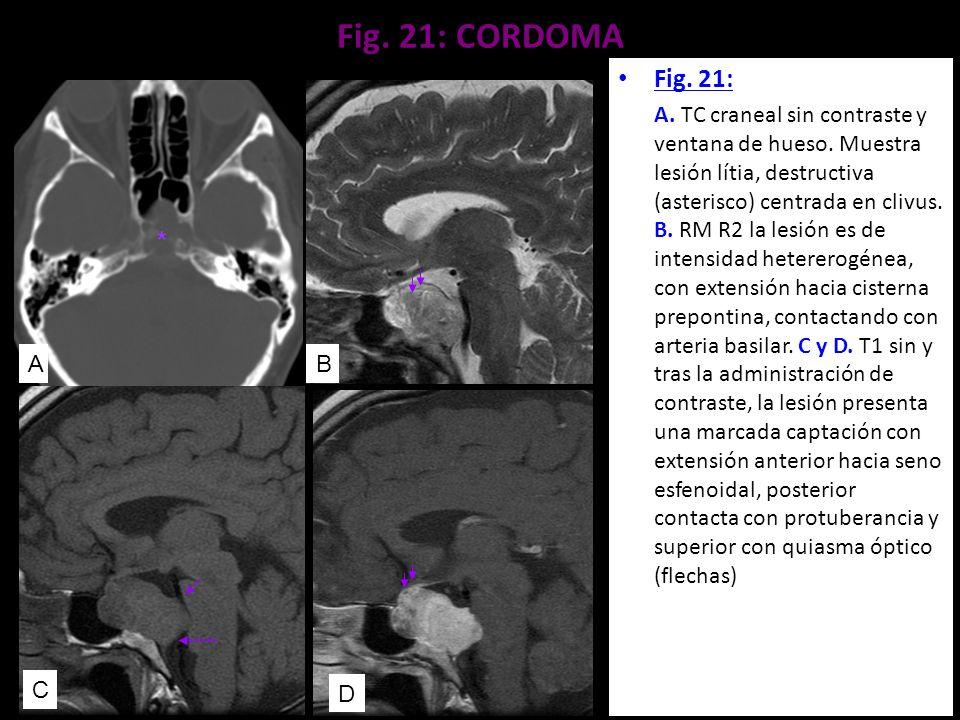 Fig. 21: CORDOMA Fig. 21: A. TC craneal sin contraste y ventana de hueso. Muestra lesión lítia, destructiva (asterisco) centrada en clivus. B. RM R2 l