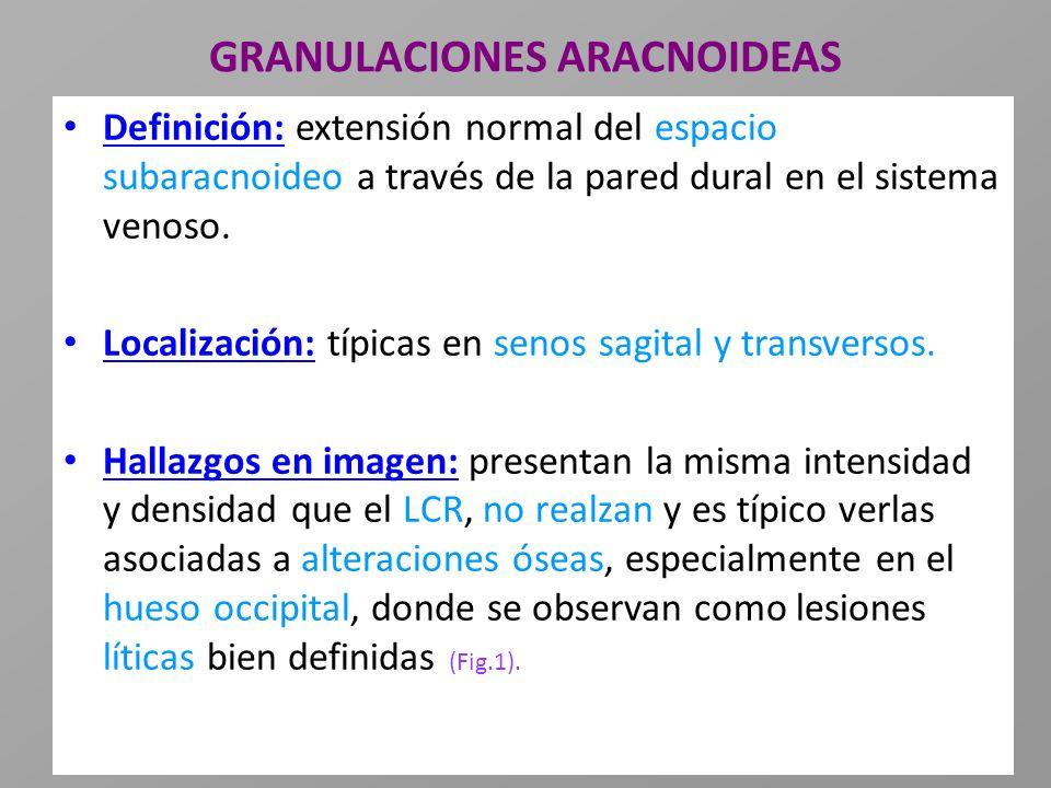 GRANULACIONES ARACNOIDEAS Definición: extensión normal del espacio subaracnoideo a través de la pared dural en el sistema venoso. Localización: típica
