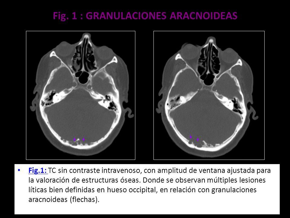 Fig. 1 : GRANULACIONES ARACNOIDEAS Fig.1: TC sin contraste intravenoso, con amplitud de ventana ajustada para la valoración de estructuras óseas. Dond