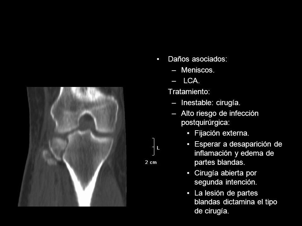 Daños asociados: –Meniscos. – LCA. Tratamiento: –Inestable: cirugía. –Alto riesgo de infección postquirúrgica: Fijación externa. Esperar a desaparició