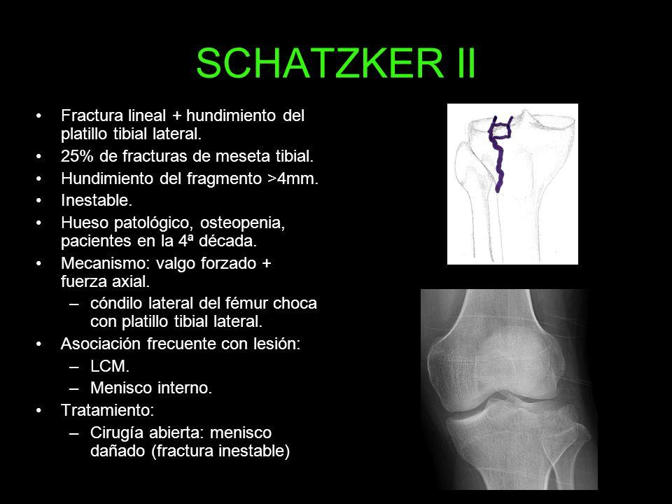 SCHATZKER II Fractura lineal + hundimiento del platillo tibial lateral. 25% de fracturas de meseta tibial. Hundimiento del fragmento >4mm. Inestable.