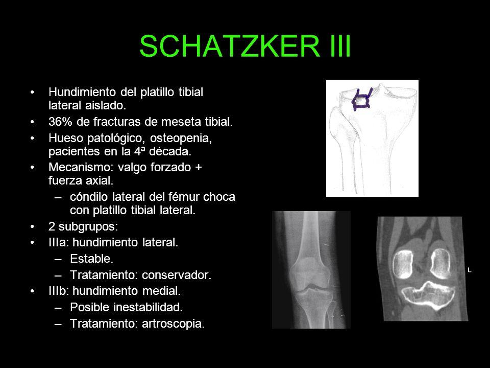 SCHATZKER III Hundimiento del platillo tibial lateral aislado. 36% de fracturas de meseta tibial. Hueso patológico, osteopenia, pacientes en la 4ª déc