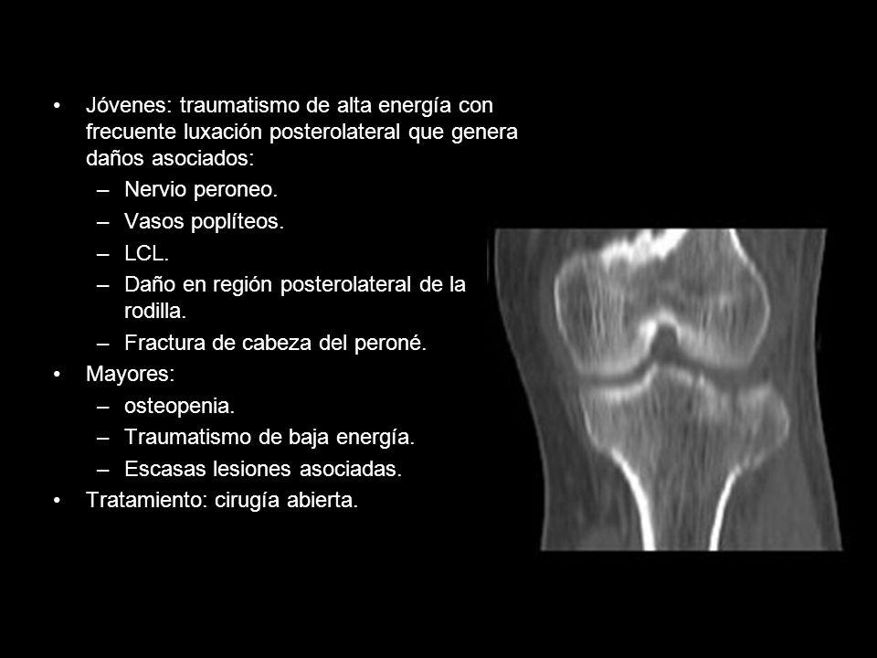 Jóvenes: traumatismo de alta energía con frecuente luxación posterolateral que genera daños asociados: –Nervio peroneo. –Vasos poplíteos. –LCL. –Daño