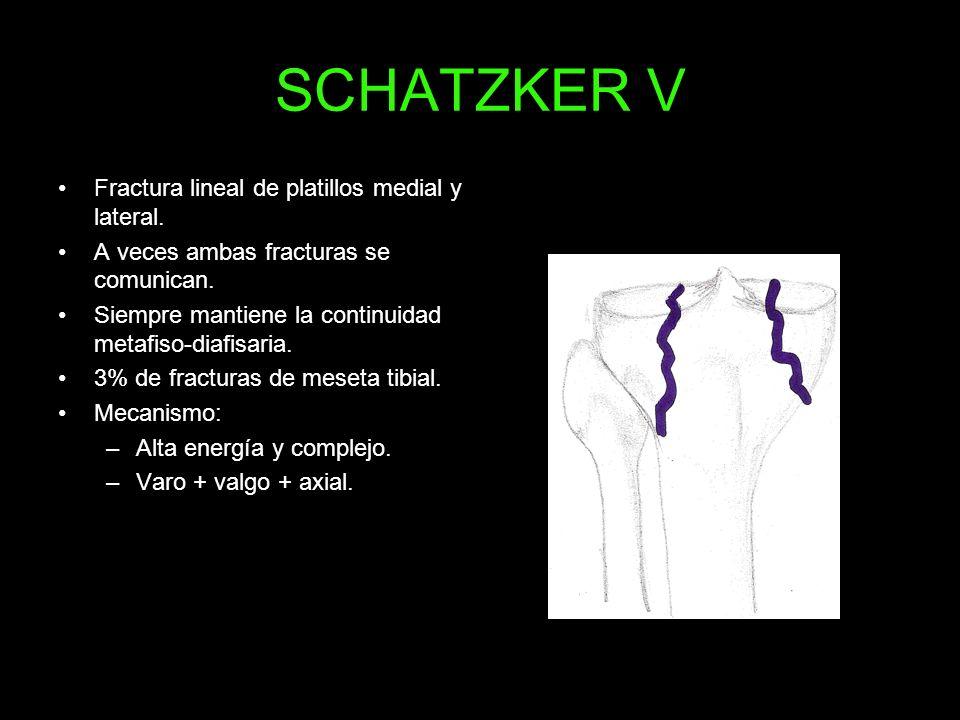 SCHATZKER V Fractura lineal de platillos medial y lateral. A veces ambas fracturas se comunican. Siempre mantiene la continuidad metafiso-diafisaria.