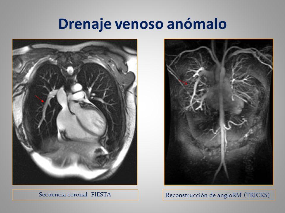 Drenaje venoso anómalo Reconstrucción de angioRM (TRICKS) Secuencia coronal FIESTA