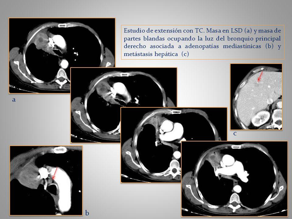 a b c Estudio de extensión con TC. Masa en LSD (a) y masa de partes blandas ocupando la luz del bronquio principal derecho asociada a adenopatías medi