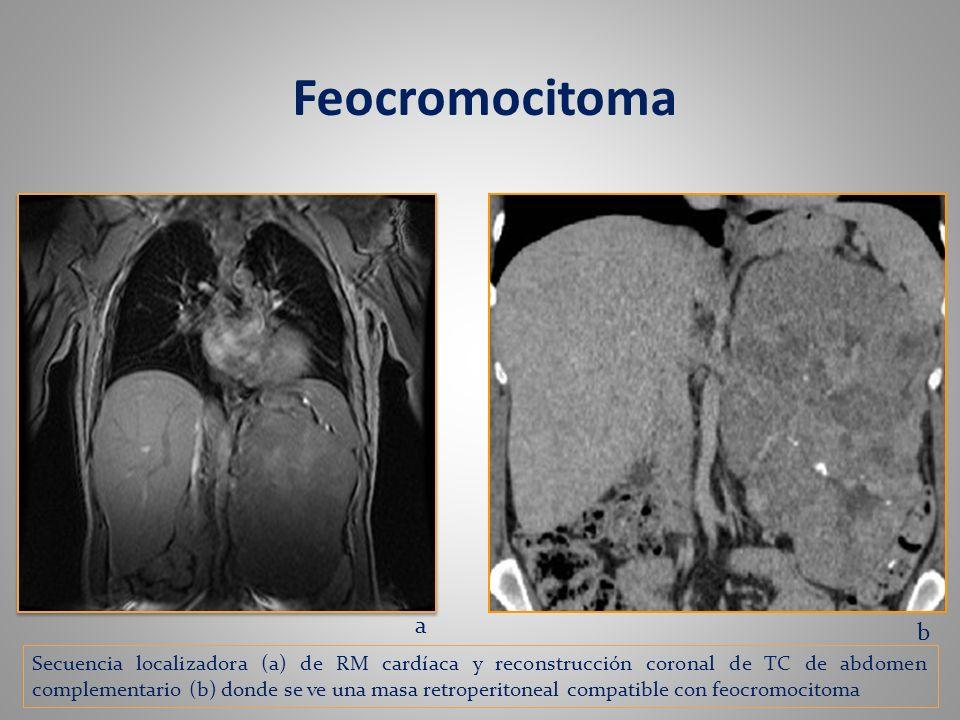 Feocromocitoma a b Secuencia localizadora (a) de RM cardíaca y reconstrucción coronal de TC de abdomen complementario (b) donde se ve una masa retrope