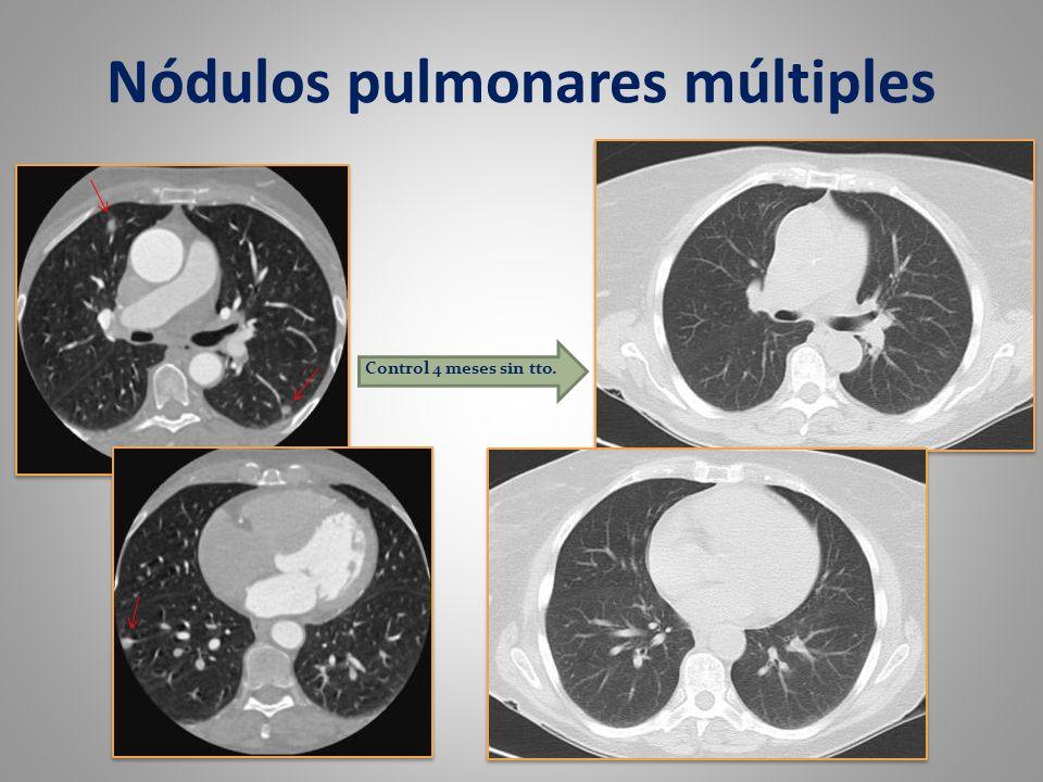 Nódulos pulmonares múltiples Control 4 meses sin tto.