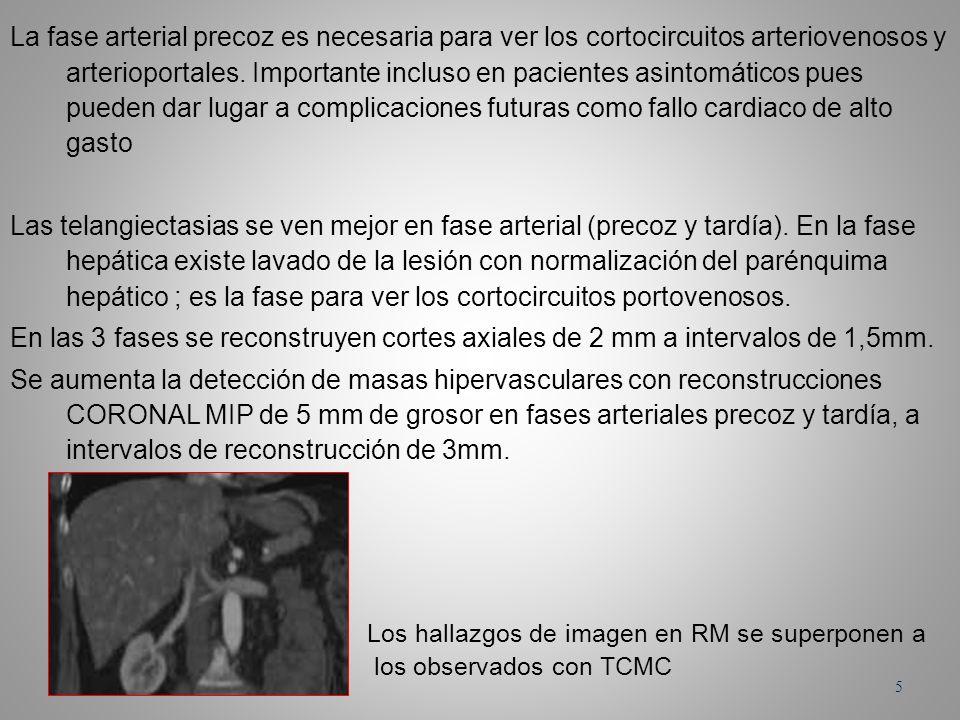 La fase arterial precoz es necesaria para ver los cortocircuitos arteriovenosos y arterioportales. Importante incluso en pacientes asintomáticos pues