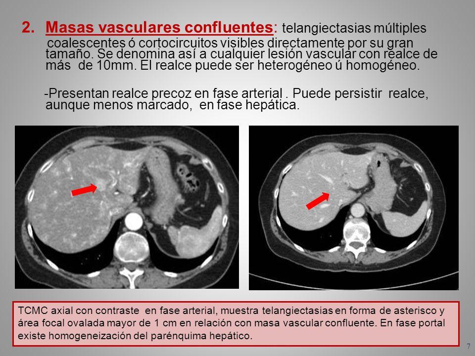 TCMC axial con contraste en fase arterial, muestra telangiectasias en forma de asterisco y área focal ovalada mayor de 1 cm en relación con masa vascu