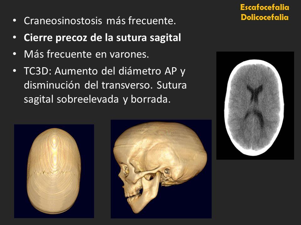 Escafocefalia Dolicocefalia Craneosinostosis más frecuente. Cierre precoz de la sutura sagital Más frecuente en varones. TC3D: Aumento del diámetro AP