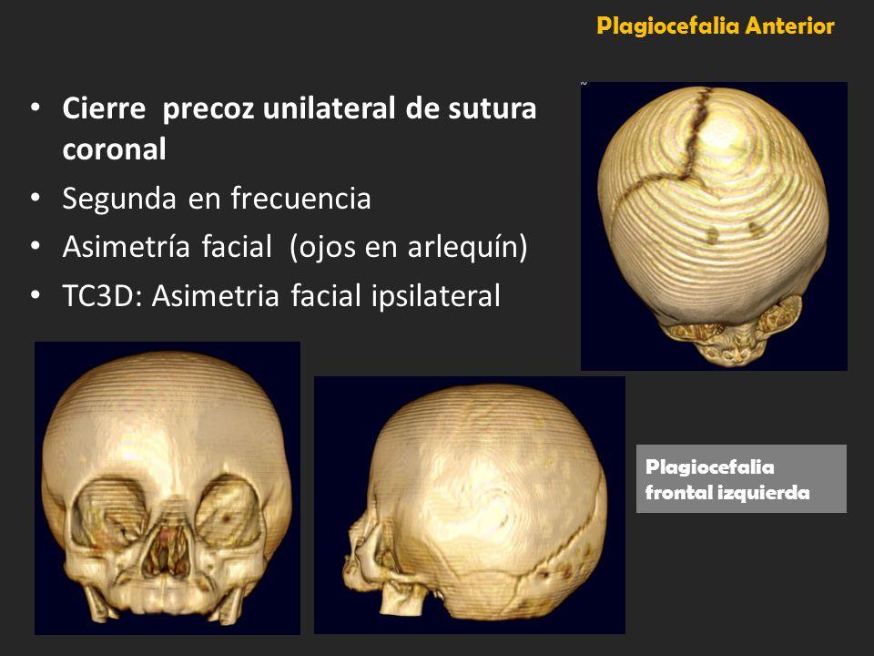 Plagiocefalia Anterior Cierre precoz unilateral de sutura coronal Segunda en frecuencia Asimetría facial (ojos en arlequín) TC3D: Asimetria facial ips