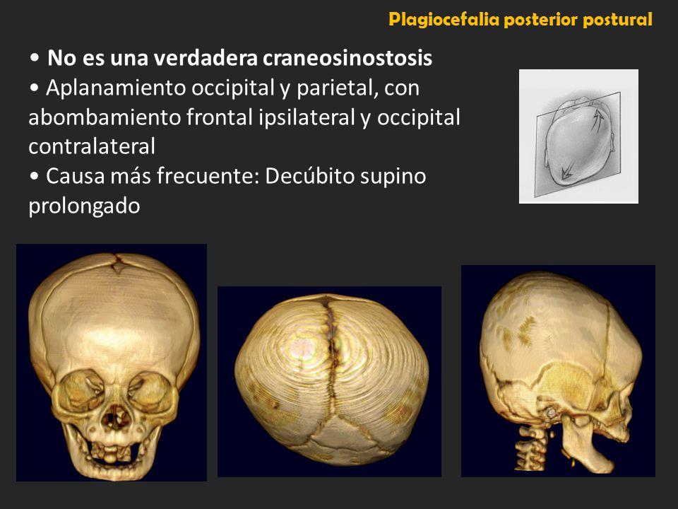Plagiocefalia posterior postural No es una verdadera craneosinostosis Aplanamiento occipital y parietal, con abombamiento frontal ipsilateral y occipi