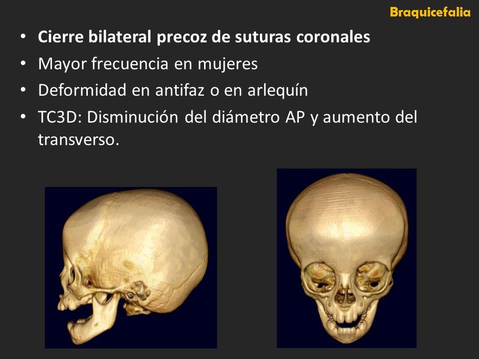 Braquicefalia Cierre bilateral precoz de suturas coronales Mayor frecuencia en mujeres Deformidad en antifaz o en arlequín TC3D: Disminución del diáme