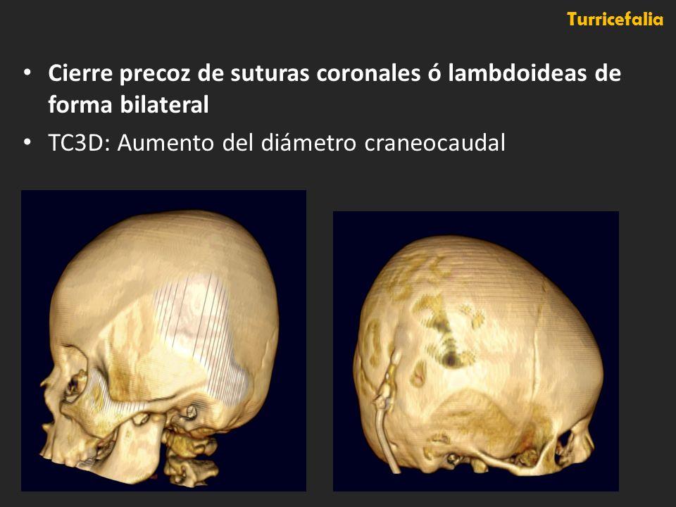 Cierre precoz de suturas coronales ó lambdoideas de forma bilateral TC3D: Aumento del diámetro craneocaudal Turricefalia