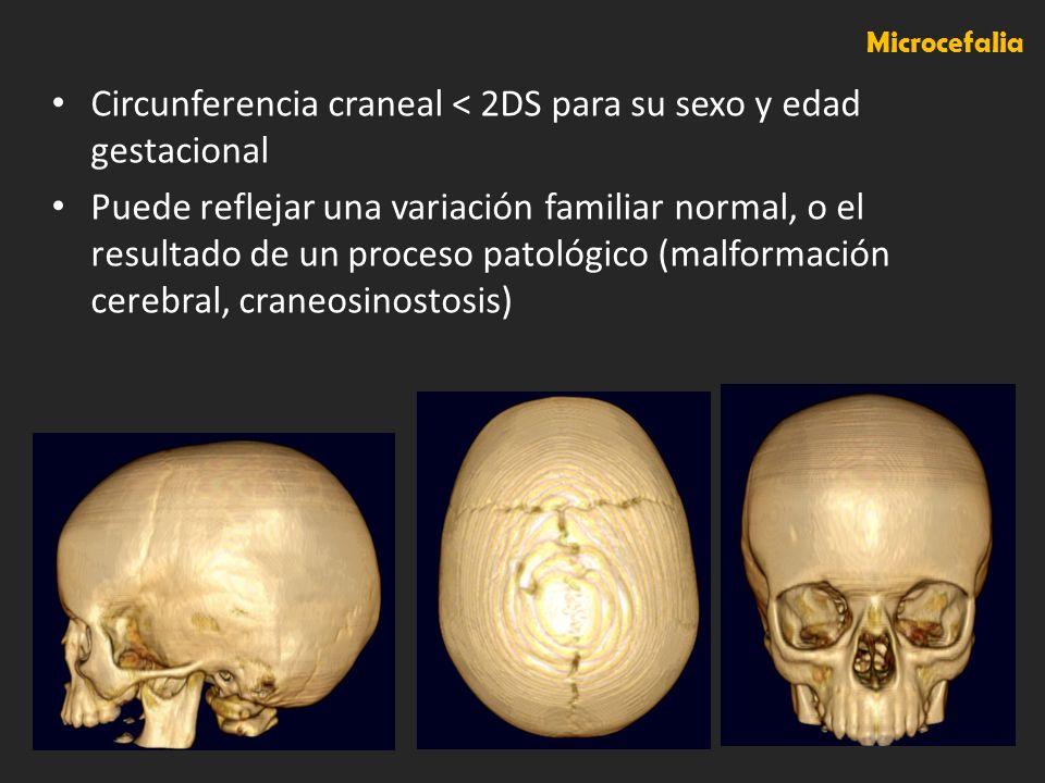 Circunferencia craneal < 2DS para su sexo y edad gestacional Puede reflejar una variación familiar normal, o el resultado de un proceso patológico (ma