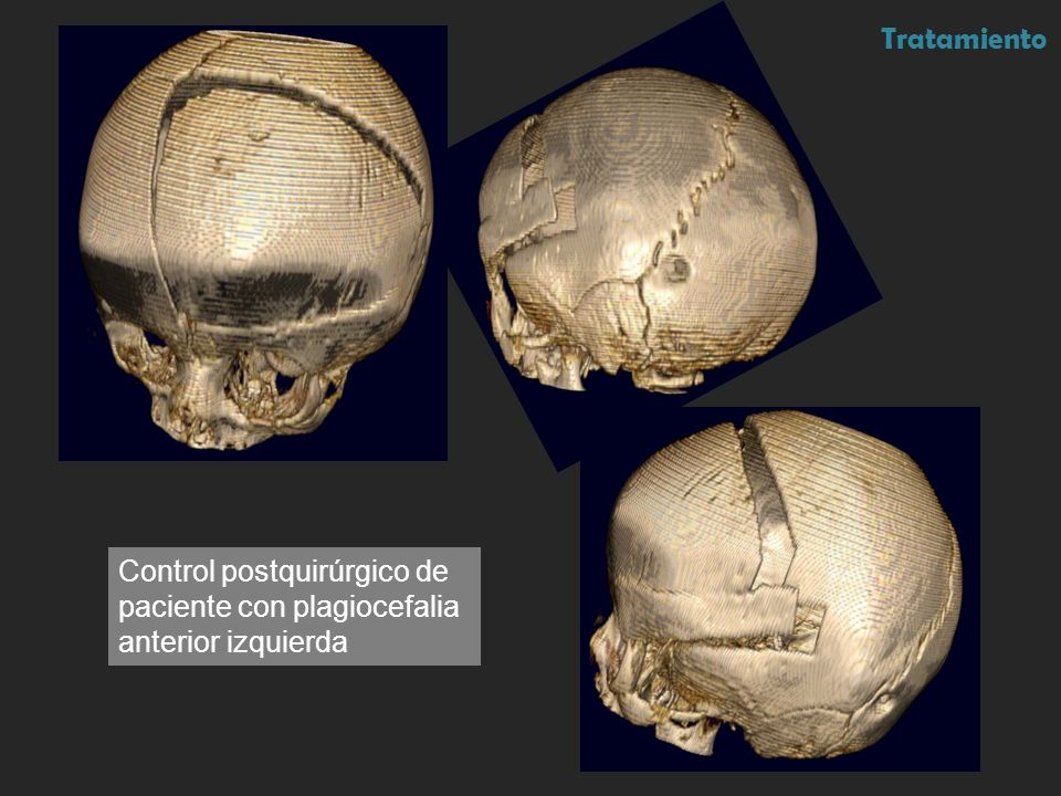 Tratamiento Control postquirúrgico de paciente con plagiocefalia anterior izquierda