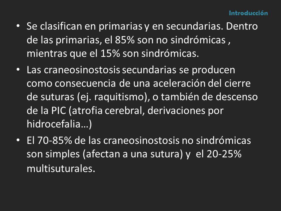 Se clasifican en primarias y en secundarias. Dentro de las primarias, el 85% son no sindrómicas, mientras que el 15% son sindrómicas. Las craneosinost