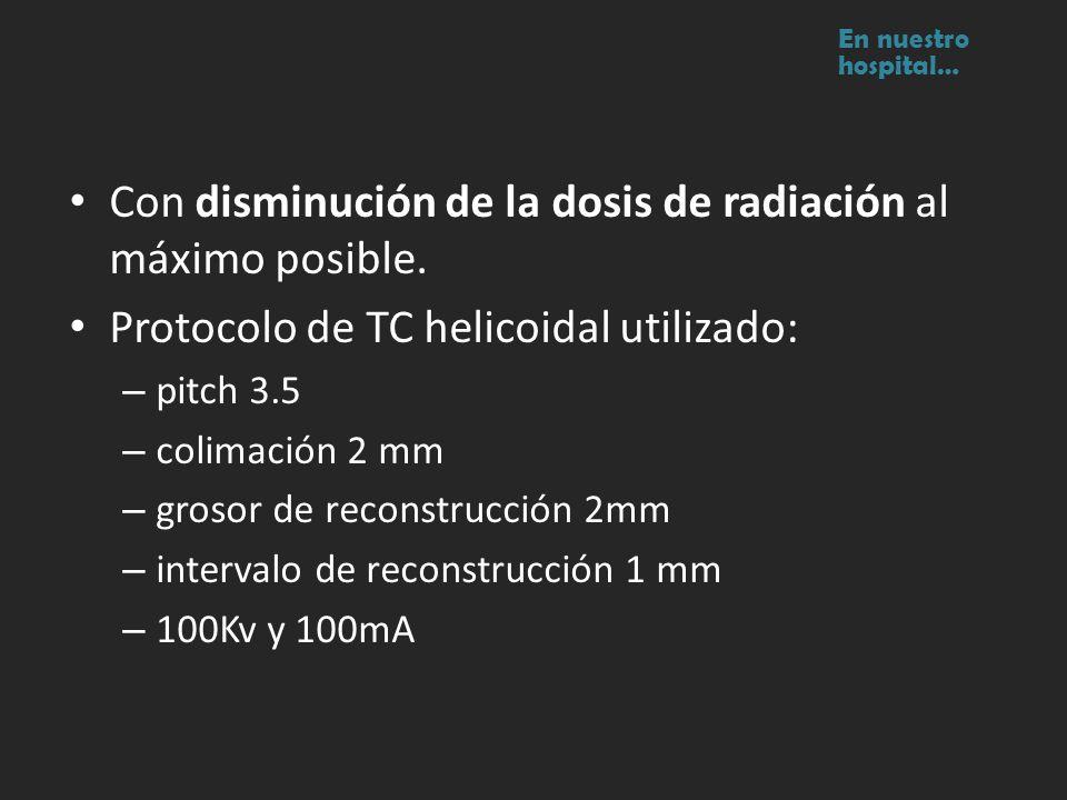 Con disminución de la dosis de radiación al máximo posible. Protocolo de TC helicoidal utilizado: – pitch 3.5 – colimación 2 mm – grosor de reconstruc