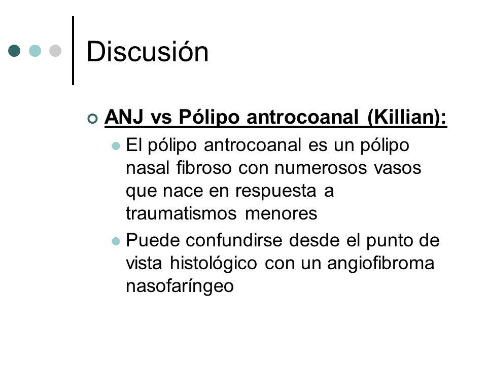 Discusión ANJ vs Pólipo antrocoanal (Killian): El pólipo antrocoanal es un pólipo nasal fibroso con numerosos vasos que nace en respuesta a traumatism