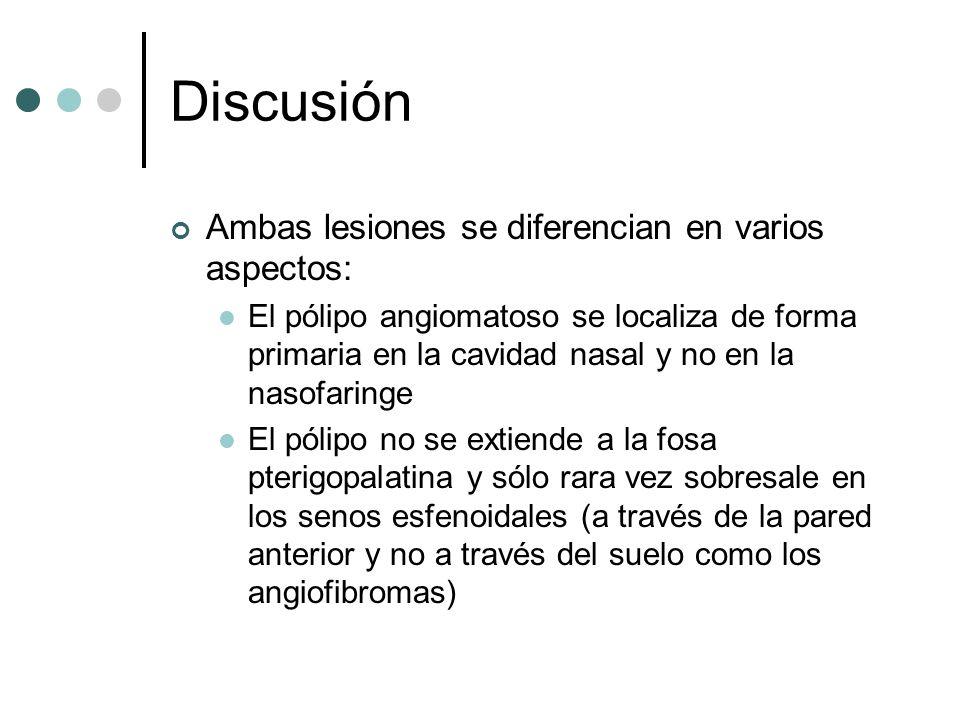 Discusión Ambas lesiones se diferencian en varios aspectos: El pólipo angiomatoso se localiza de forma primaria en la cavidad nasal y no en la nasofar