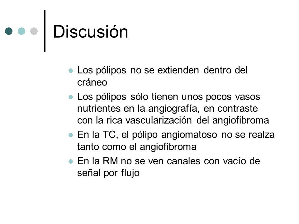 Discusión Los pólipos no se extienden dentro del cráneo Los pólipos sólo tienen unos pocos vasos nutrientes en la angiografía, en contraste con la ric