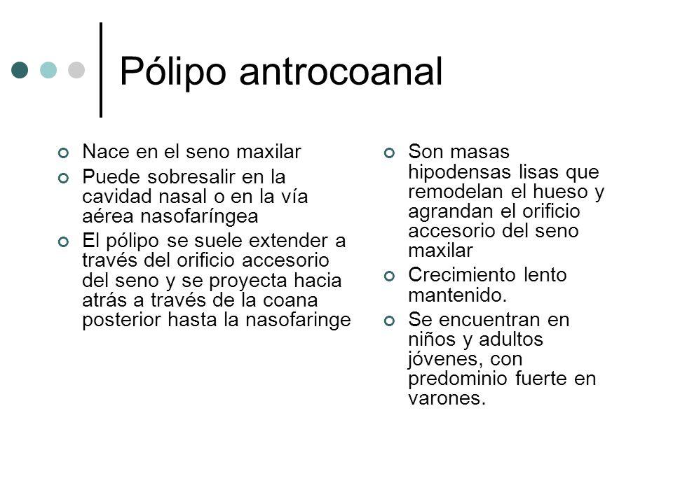Pólipo antrocoanal Nace en el seno maxilar Puede sobresalir en la cavidad nasal o en la vía aérea nasofaríngea El pólipo se suele extender a través de
