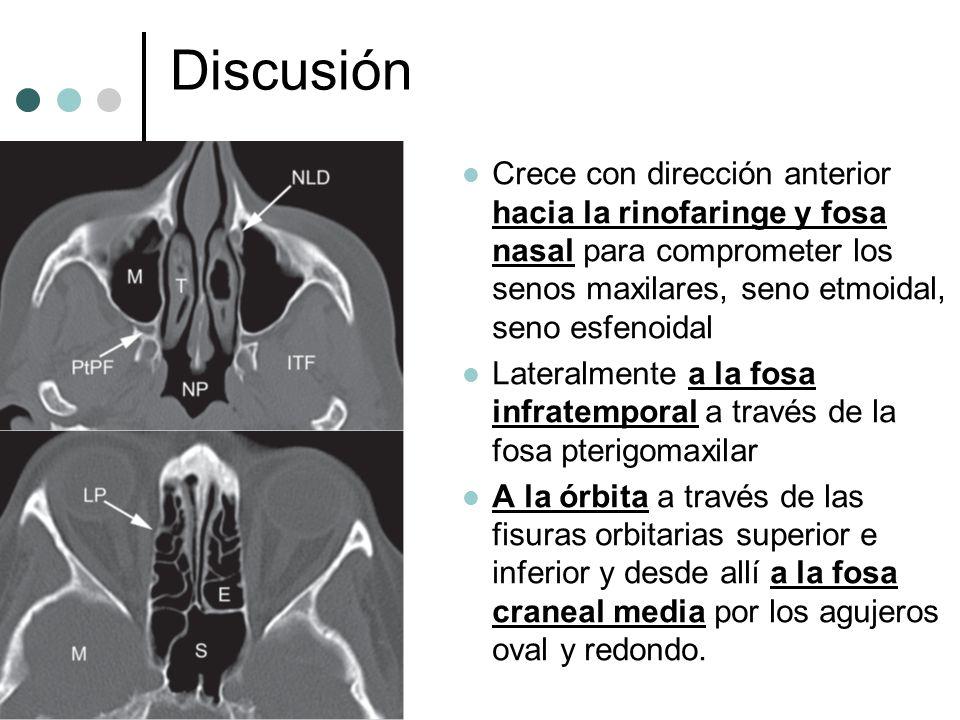 Discusión Crece con dirección anterior hacia la rinofaringe y fosa nasal para comprometer los senos maxilares, seno etmoidal, seno esfenoidal Lateralm