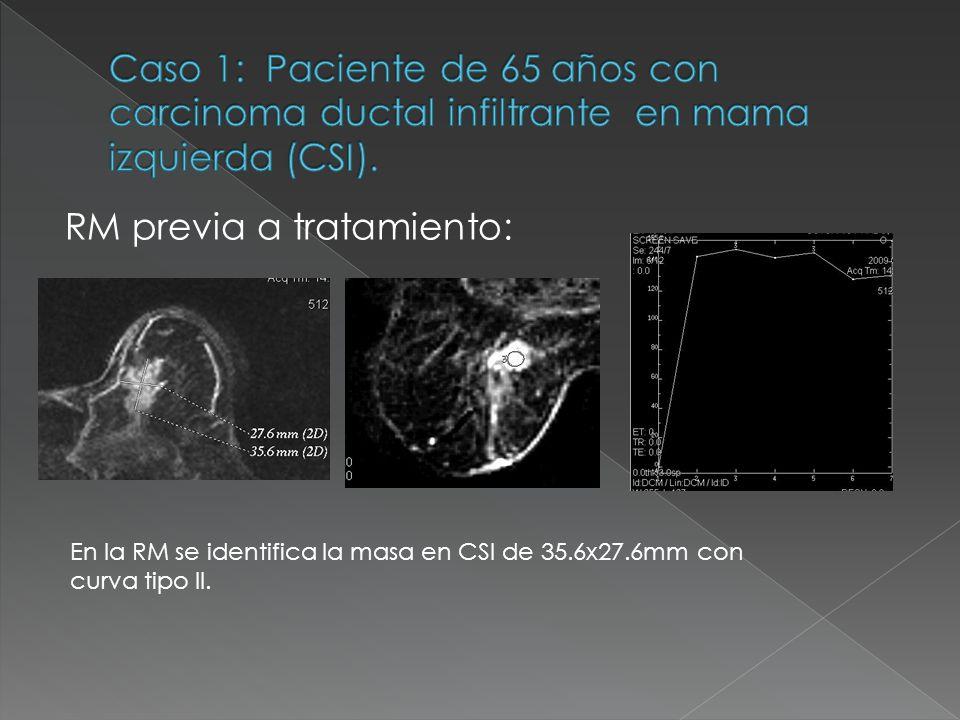 RM previa a tratamiento: En la RM se identifica la masa en CSI de 35.6x27.6mm con curva tipo II.