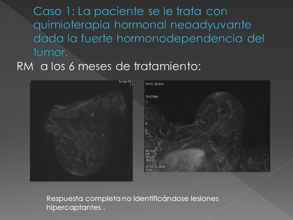 RM a los 6 meses de tratamiento: Respuesta completa no identificándose lesiones hipercaptantes.