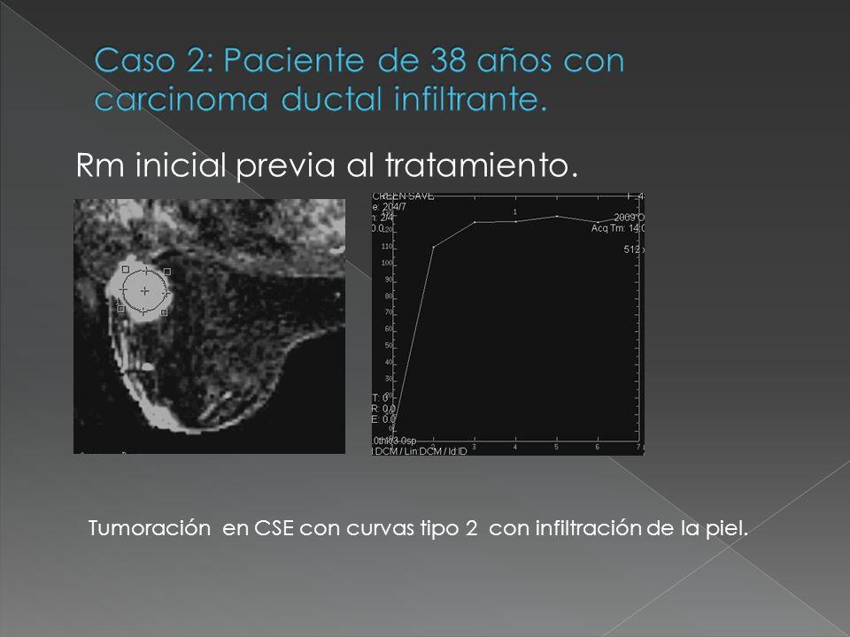Rm inicial previa al tratamiento. Tumoración en CSE con curvas tipo 2 con infiltración de la piel.