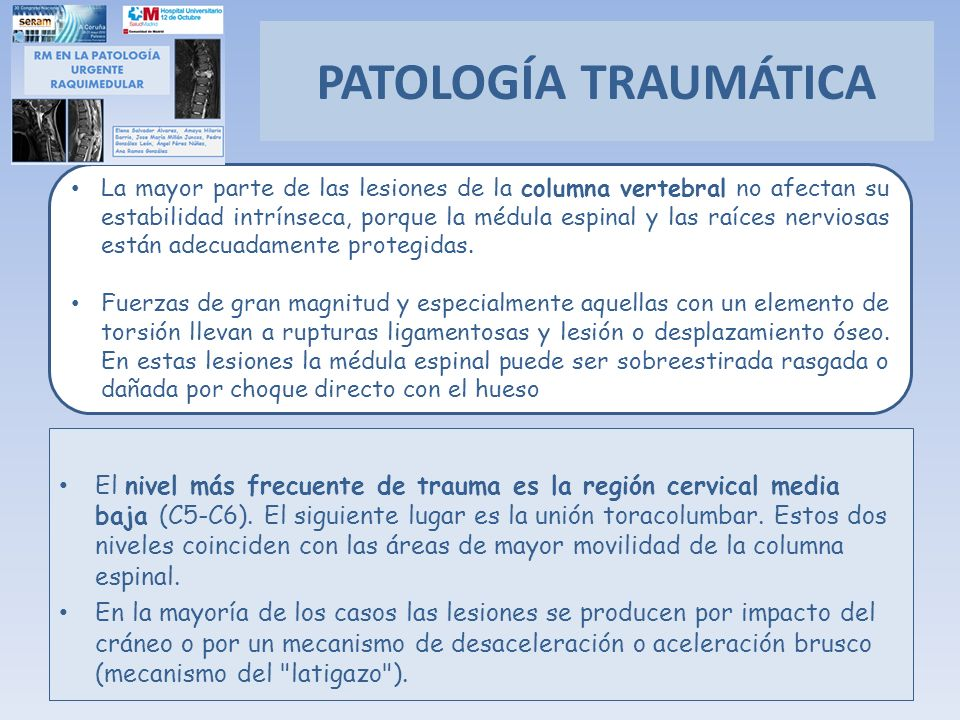 El nivel más frecuente de trauma es la región cervical media baja (C5-C6). El siguiente lugar es la unión toracolumbar. Estos dos niveles coinciden co