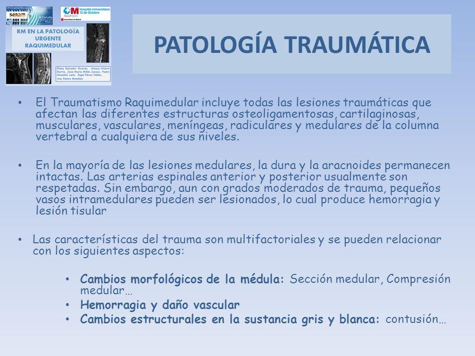 El Traumatismo Raquimedular incluye todas las lesiones traumáticas que afectan las diferentes estructuras osteoligamentosas, cartilaginosas, musculare
