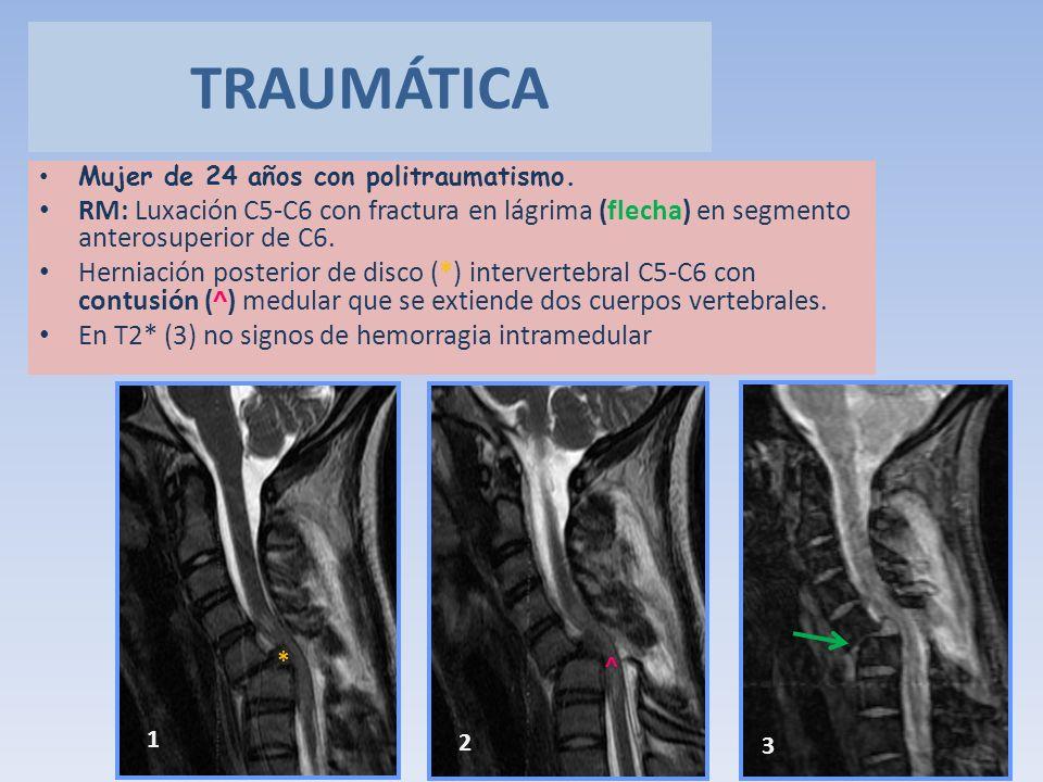 Mujer de 24 años con politraumatismo. RM: Luxación C5-C6 con fractura en lágrima (flecha) en segmento anterosuperior de C6. Herniación posterior de di