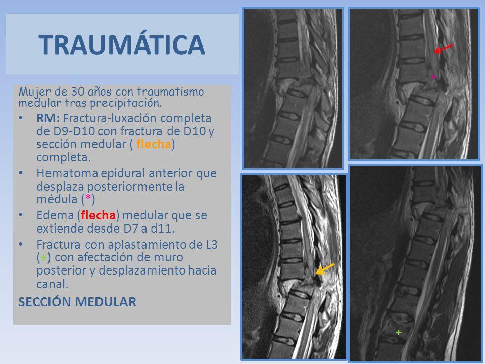 Mujer de 30 años con traumatismo medular tras precipitación. RM: Fractura-luxación completa de D9-D10 con fractura de D10 y sección medular ( flecha)