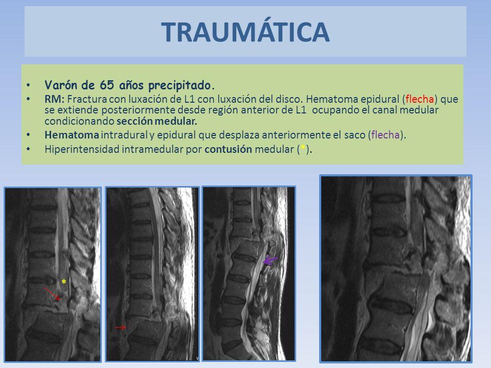 Varón de 65 años precipitado. RM: Fractura con luxación de L1 con luxación del disco. Hematoma epidural (flecha) que se extiende posteriormente desde