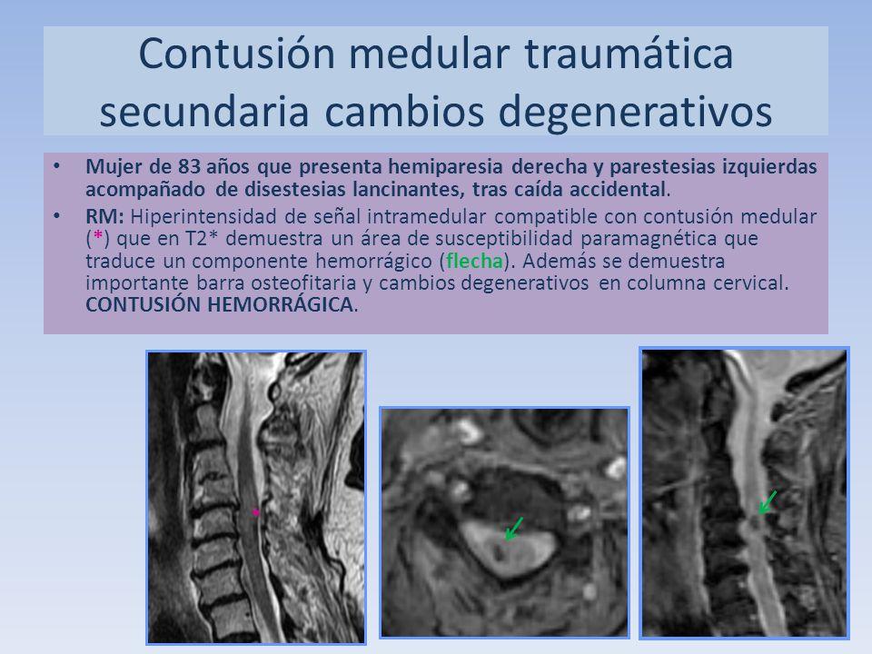 Mujer de 83 años que presenta hemiparesia derecha y parestesias izquierdas acompañado de disestesias lancinantes, tras caída accidental. RM: Hiperinte