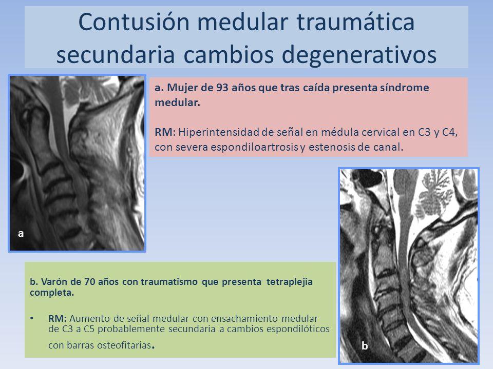 b. Varón de 70 años con traumatismo que presenta tetraplejia completa. RM: Aumento de señal medular con ensachamiento medular de C3 a C5 probablemente