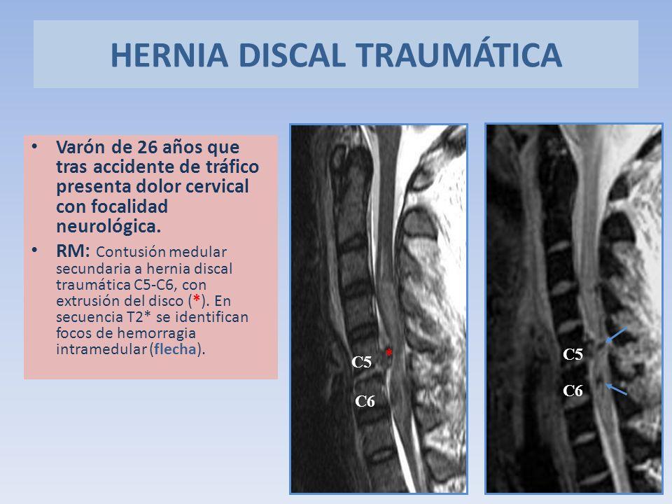 Varón de 26 años que tras accidente de tráfico presenta dolor cervical con focalidad neurológica. RM: Contusión medular secundaria a hernia discal tra