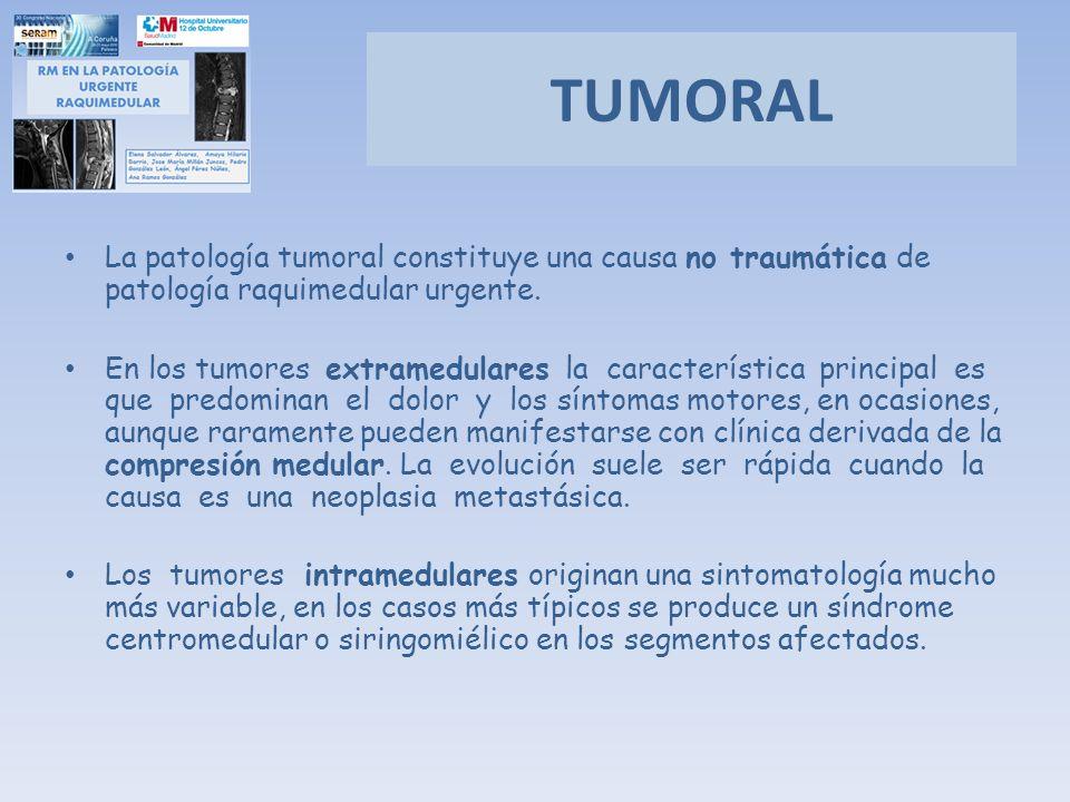 TUMORAL La patología tumoral constituye una causa no traumática de patología raquimedular urgente. En los tumores extramedulares la característica pri