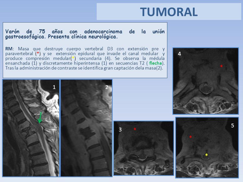 Varón de 75 años con adenocarcinoma de la unión gastroesofágica. Presenta clínica neurológica. RM: Masa que destruye cuerpo vertebral D3 con extensión
