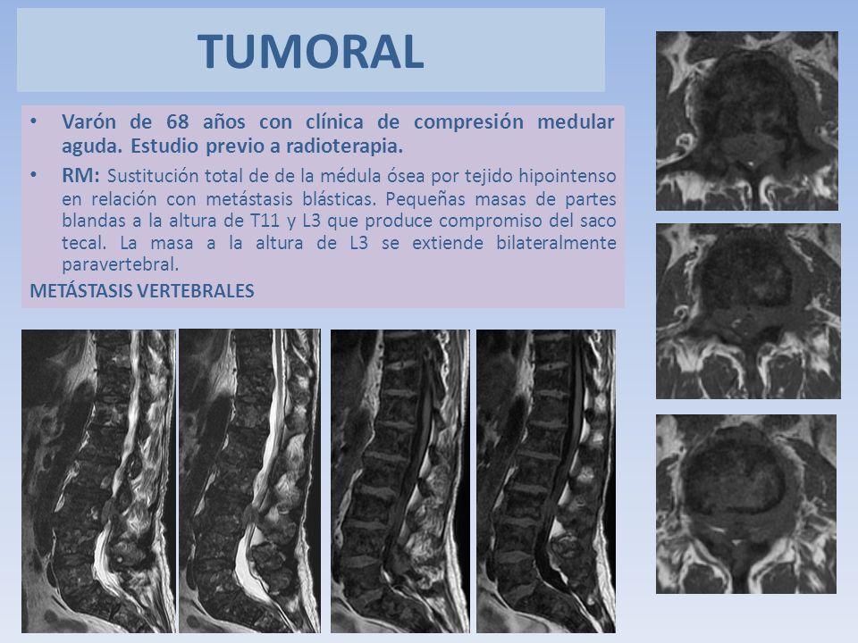 Varón de 68 años con clínica de compresión medular aguda. Estudio previo a radioterapia. RM: Sustitución total de de la médula ósea por tejido hipoint