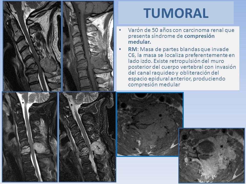 Varón de 50 años con carcinoma renal que presenta síndrome de compresión medular. RM: Masa de partes blandas que invade C6, la masa se localiza prefer