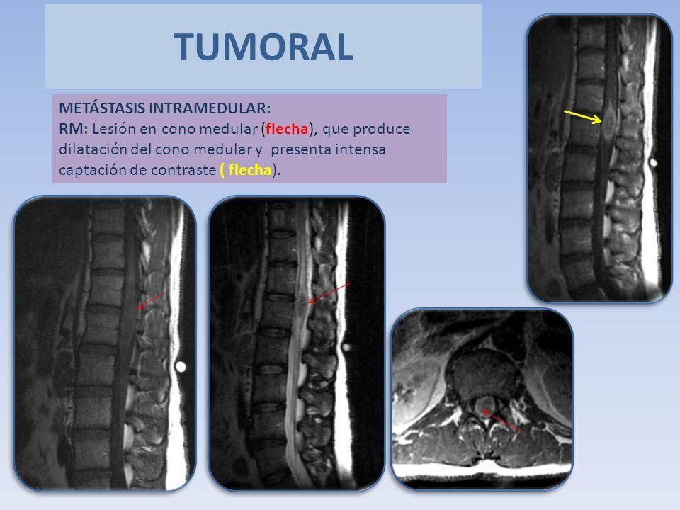 TUMORAL METÁSTASIS INTRAMEDULAR: RM: Lesión en cono medular (flecha), que produce dilatación del cono medular y presenta intensa captación de contrast
