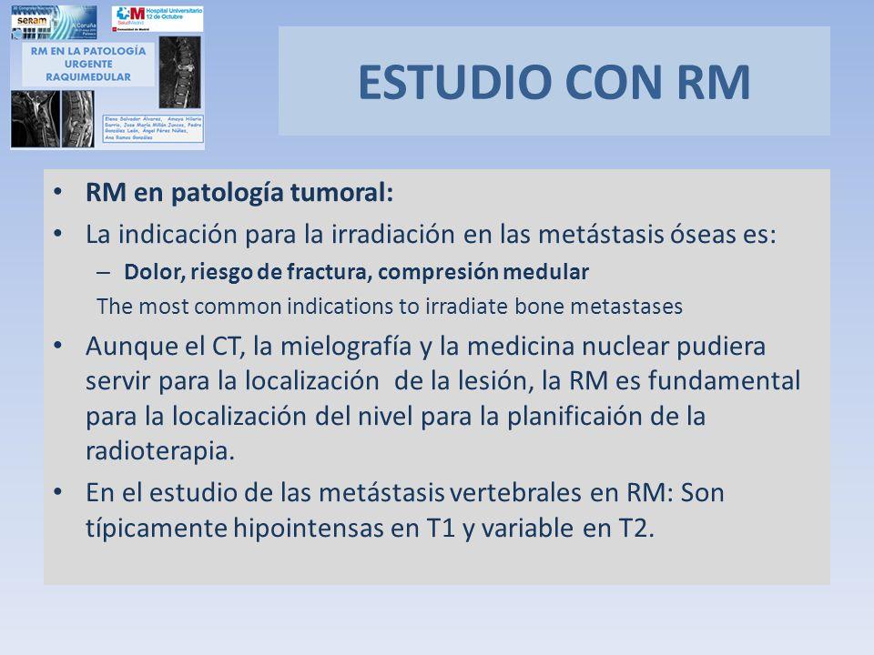 RM en patología tumoral: La indicación para la irradiación en las metástasis óseas es: – Dolor, riesgo de fractura, compresión medular The most common