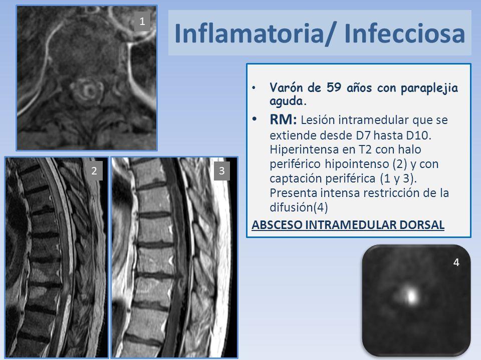 Inflamatoria/ Infecciosa Varón de 59 años con paraplejia aguda. RM: Lesión intramedular que se extiende desde D7 hasta D10. Hiperintensa en T2 con hal